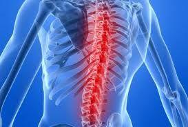 Tratament naturist pentru ameliorarea durerilor de spate